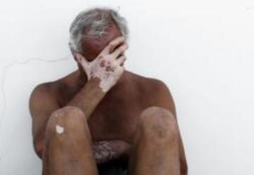 老年患了白癜风该如何护理?