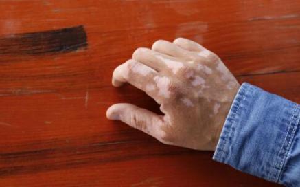 儿童如何预防白癜风皮肤病呢